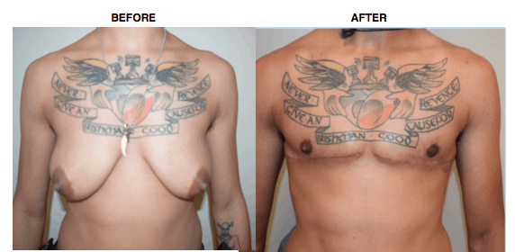 ftm top surgery dr. gallagher