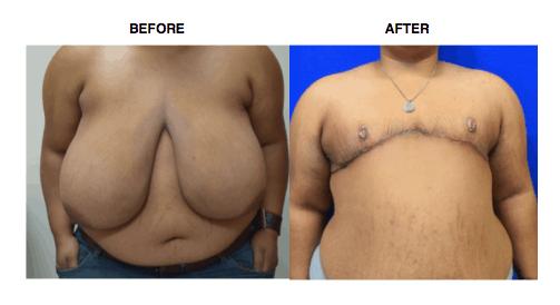 ftm top surgery ftm keyhole surgery chest surgery