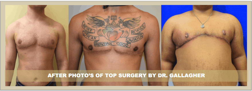 Dr. Gallagher on FTM Top Surgery FTM (double incision / keyhole surgery)