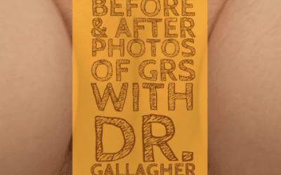 MTF Vaginoplasty (GRS):  Before and After Photos of SRS with Dr. Gallagher